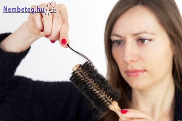 Vitaminhiány is okozhat hajhullást