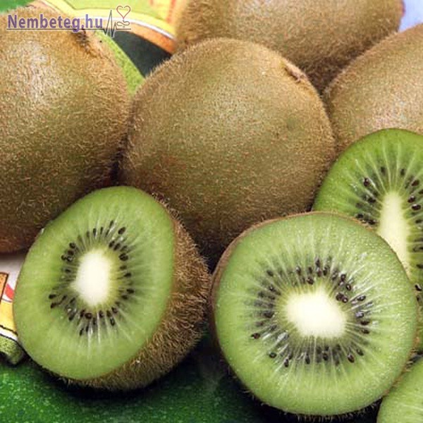 Kivi: nagy mennyiségű tápanyag és kevés kalória