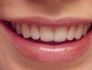 Csapvízzel a fogszuvasodás ellen