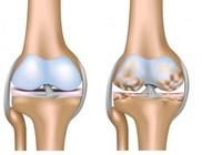 Egy kis odafigyeléssel megelőzhető a csontritkulás
