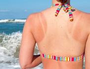 A napégés fokozza a bőrbetegségek kialakulását