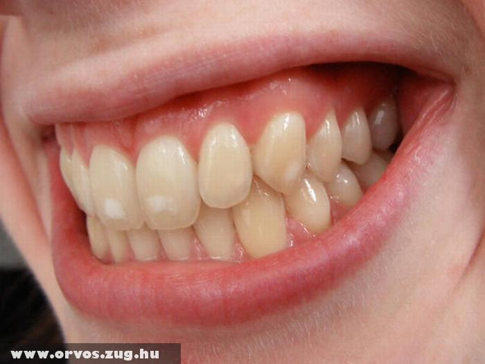 A vitaminhiány a fogakon is megjelenik