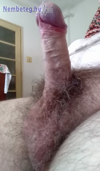Márványos merev pénisz