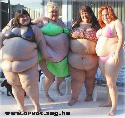 Elhízott nõk