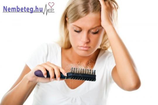 A hajhullás gyakori probléma