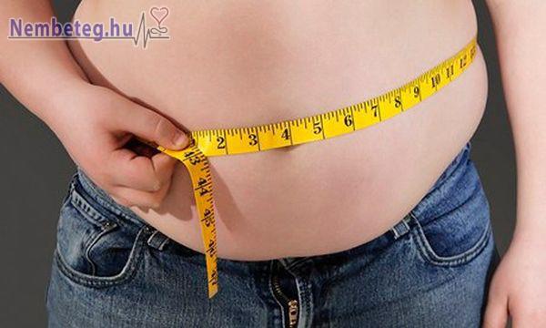 A túlsúly számos betegség kiváltó oka lehet