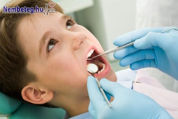 Rendszeres fogászati szűréssel több későbbi megbetegedést is elkerülhetünk