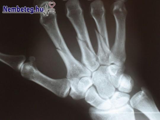 Törött kéz röntgenje
