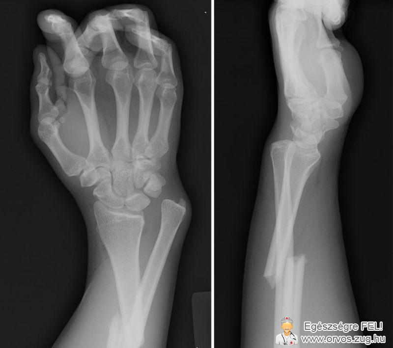 Törött kéz