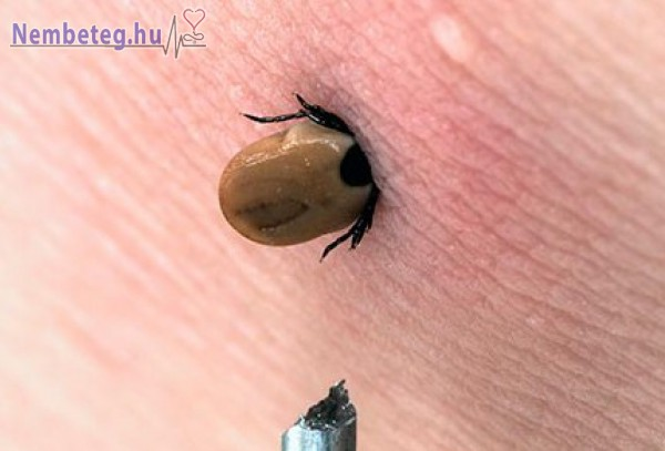 Kullancs által okozott fertőzés