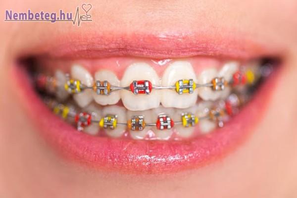 Fogszabályzó - a jó fogakért