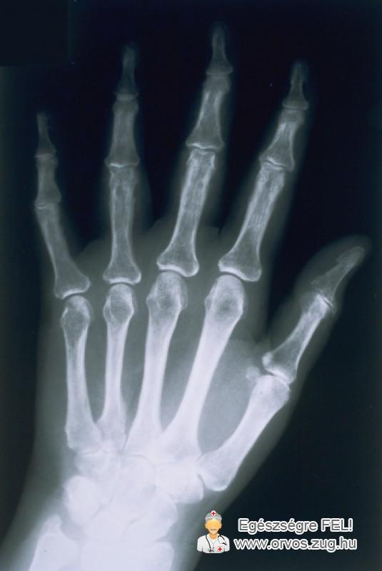 Röntgenkép