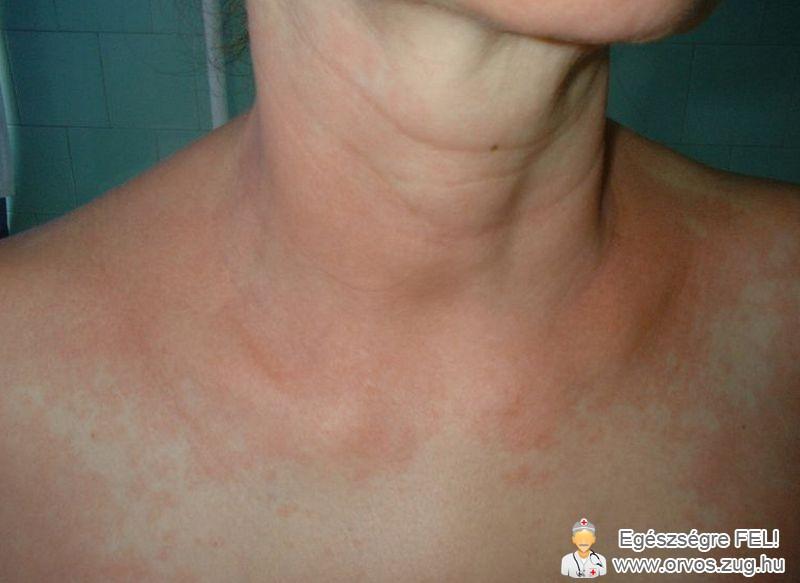 Gyógyszerallergia bőrtünete
