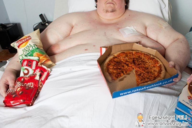 Kóros elhízás