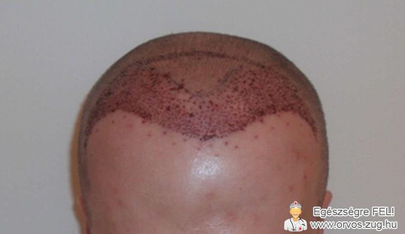 Sikeres hajbeültetés után