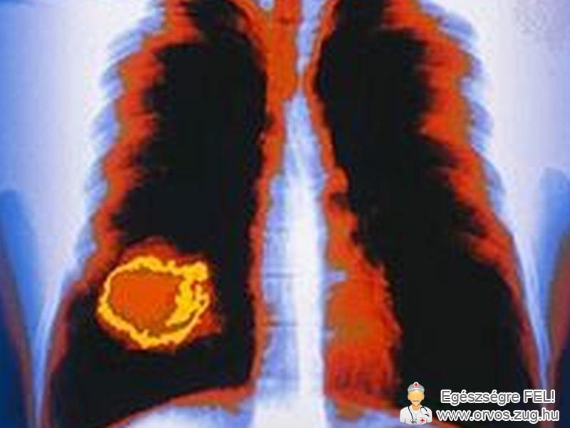 Tüdőrákról felvétel