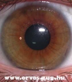 Egy barna szem