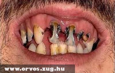 Szuvas, lyukas fogsor