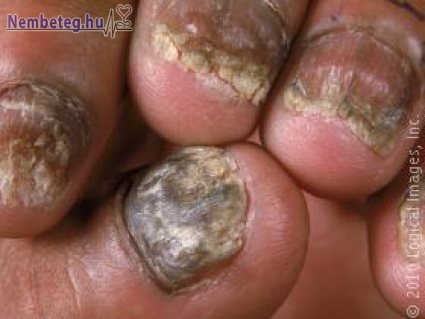 Körömgomba, gombás fertőzés