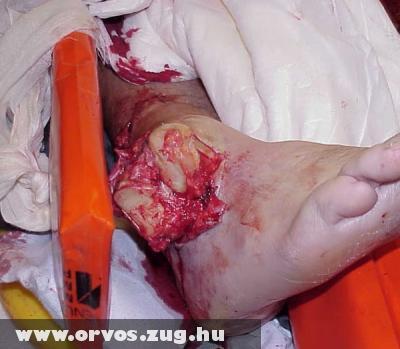 Nyílt lábszár - boka törés