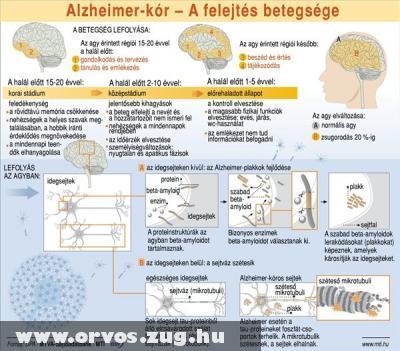 Alzheimer-kór: a felejtés betegsége; a betegség lefolyása
