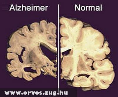 Az agy elváltozása az Alzheimer-kór következtében