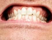 Miért csikorgatjuk a fogainkat?